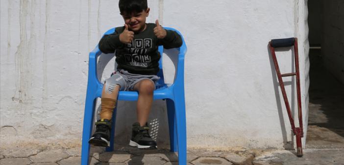 Suriyeli Muhammed Hayata Tutunacağı Protez Bacağa Kavuştu